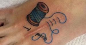 Tetoválások, amelyek mesterművé alakították a csúnya sebhelyeket