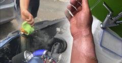 A srác járó motornál nyitotta ki a hűtősapkát az öreg BMW-n. (Ostoba ötlet)