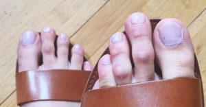 Hosszabb a második ujjad a lábadon, mint a nagylábujjad? Ezt árulja el rólad