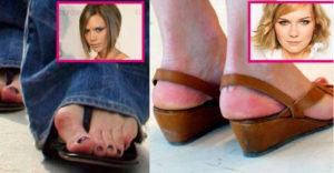 14 híres nő akinek undorító a lábfeje