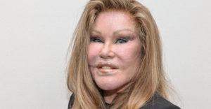 A macskanő az állítja, hogy soha nem volt plasztikai műtéte és még a fiatalkori fotóit is megmutatta.