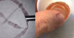 A sebész meg akarta mutatni, hogy mennyire pontos (Megoperálta a nyers tojást)