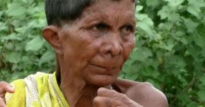 12 ujjal és 20 lábujjal született: boszorkánynak hiszik és durván kiközösítik az indiai nőt
