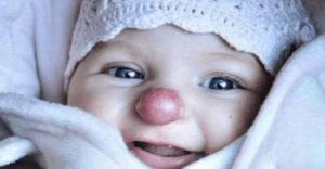 Évekkel ezelőtt bohócorra hasonlító orral született egy kislány. Hogyan néz ki most, több év után?