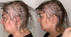 Még csak nem is remélte, hogy a ritka hajából szép frizurát lehet csinálni. A fodrásznő azonban varázsolt egyet