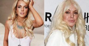 10 híresség, aki csúnyán tönkretette magát a plasztikai műtétekkel