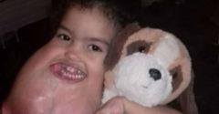 A 3 éves kislány olyan műtéten esett át, amely megváltoztatta az életét. Egészen ártalmatlanul kezdődött a gyötrelme