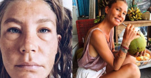 Egy évig nem ivott vizet a nő: ez történt a testével