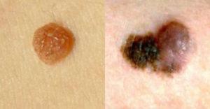 Hogyan lehet megkülönböztetni a bőrrák jeleit a közönséges anyajegytől