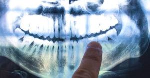 A válástól a betegségig: a fogaink megőrzik az életünk fontos eseményeit?