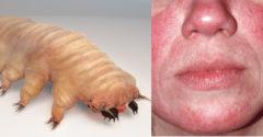 Egy parazita, amelyet sokan a testünkben hordozunk, és sejtelmünk sincs a létezéséről. Ennek azonban több tünete van