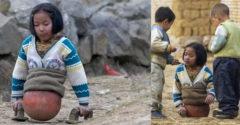 Egy balesetben elveszítette lábait, éveken át egy labda segítségével közlekedett. Napjainkban élsportoló.