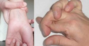 Hajlékony ennyire a kezed? Valószínűleg Marfan szindrómában szenvedsz.