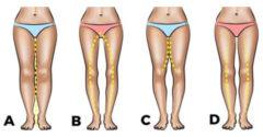 Mit árul el a nőről a lábának az alakja? Értékes információ lehet a pasik számára.