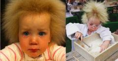 Egy ritka hajbetegséggel született. Ma már 11 éves, és már megszokta, hogy más, mint a többiek.