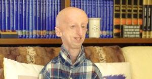 Ez a 25 éves fiú egy 100 éves bácsika megviselt, összetört testében él, de nem hagyja, hogy legyőzze a betegség