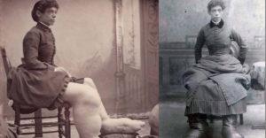 Zokni helyett párnahuzatot viselt a lábfején. A hatalmas méreteket öltő lábú nő története.