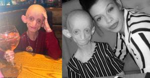 Benjamin Button szindrómás volt az a lány, aki egy idős néni testében hunyt el